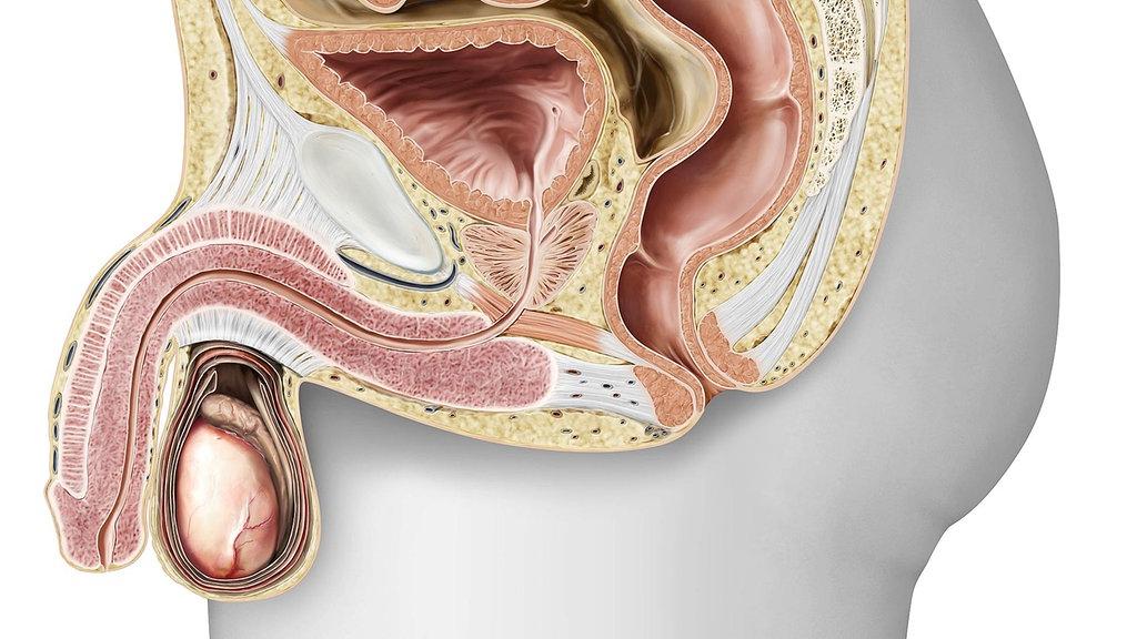 Co to jest zapalenie gruczołu krokowego? Jak leczyć zapalenie prostaty?