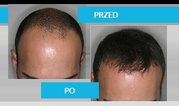 Czy łysienie jest genetyczne?