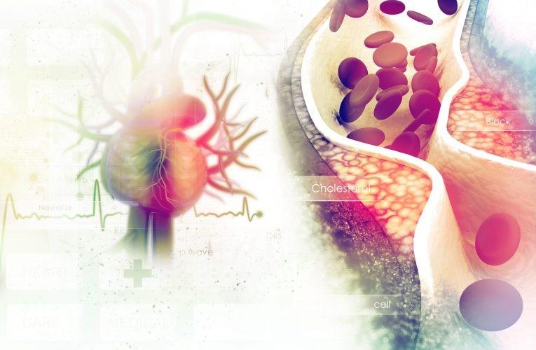 Choroba niedokrwienna serca Skąd wiesz, że masz wysoki poziom cholesterolu?