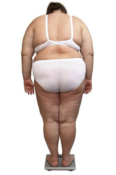 otylosc i nadwaga Jakie są zagrożenia dla zdrowia związane z otyłością?